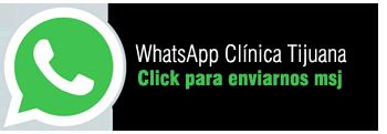 WhatsApp_TIJUANA_SP.png
