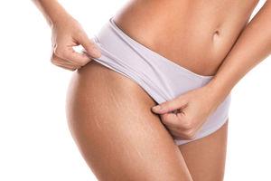 Como hacer para que no salgan estrias durante el embarazo