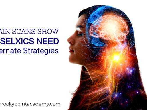 Brain Scans Show Dyslexics Read Better with Alternative Strategies