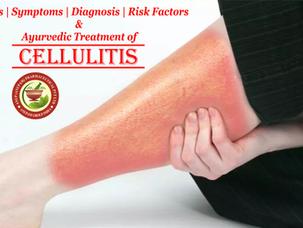 What is Cellulitis   Causes   Symptoms   Diagnosis Methodology   Risk Factors   Ayurvedic Treatment