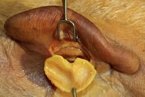 01_Harvesting_Ear_Cartilage.jpg