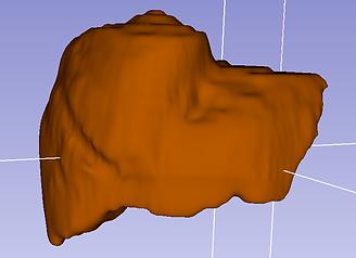 3d slicer liver anatomy model katrina hass