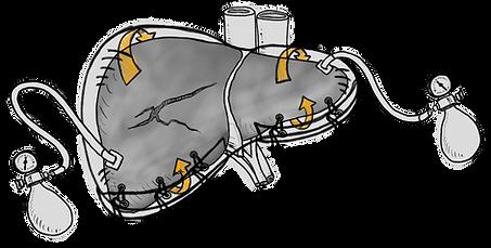 liver airbag bmc medical illustration surgery katrina hass mscbmc