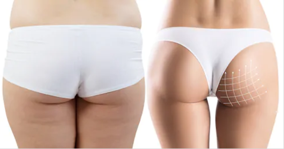 Buttlifting, (Lower Back) 10 Sessions