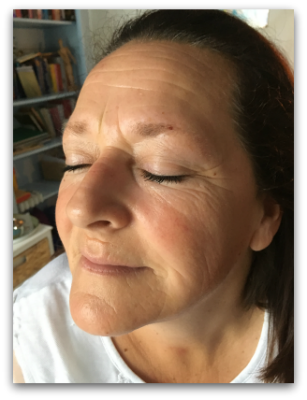 Jane Goodman's Cosmetic Acupuncture: Before #5