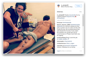 What Are The Purple Dots On Michael Phelps? Cupping Has An Olympic Moment blog article by Gretchen Reynolds and Karen Crouse