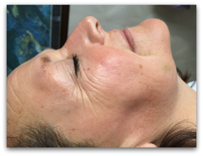 Jane Goodman's Cosmetic Acupuncture: Before #3