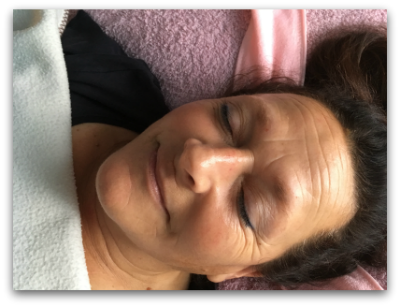 Jane Goodman's Cosmetic Acupuncture: After #4