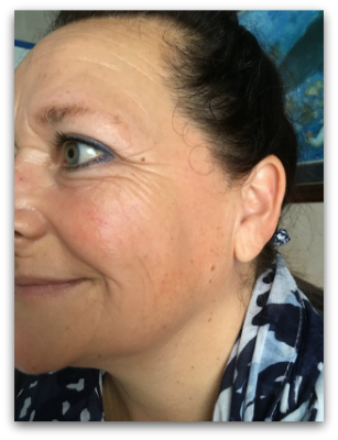 Jane Goodman's Cosmetic Acupuncture: After #6