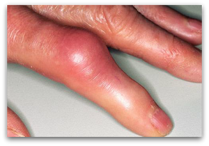 Alternative Remedies For Joint Pain, Gout & Arthritis blog article by Jane | Jane Goodman Holistic Therapies, Northampton