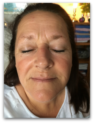 Jane Goodman's Cosmetic Acupuncture: Before #1