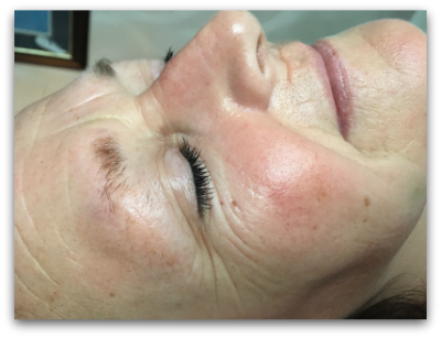 Jane Goodman's Cosmetic Acupuncture: Before #4