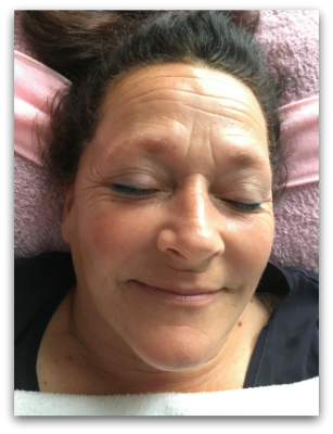 Jane Goodman's Cosmetic Acupuncture: After #1