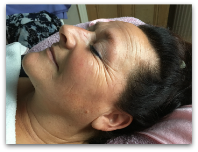 Jane Goodman's Cosmetic Acupuncture: After #3