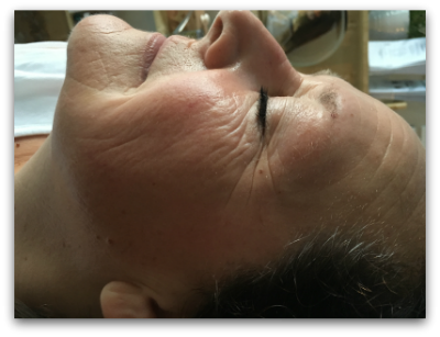 Jane Goodman's Cosmetic Acupuncture: Before #2