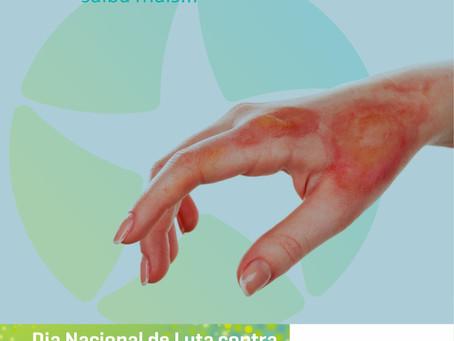 Lista de cuidados para prevenir queimaduras