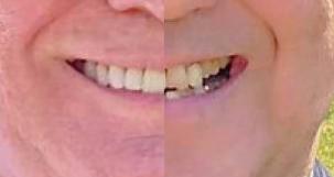 【2020年7月最新】歯から考える日本と海外の違い!!