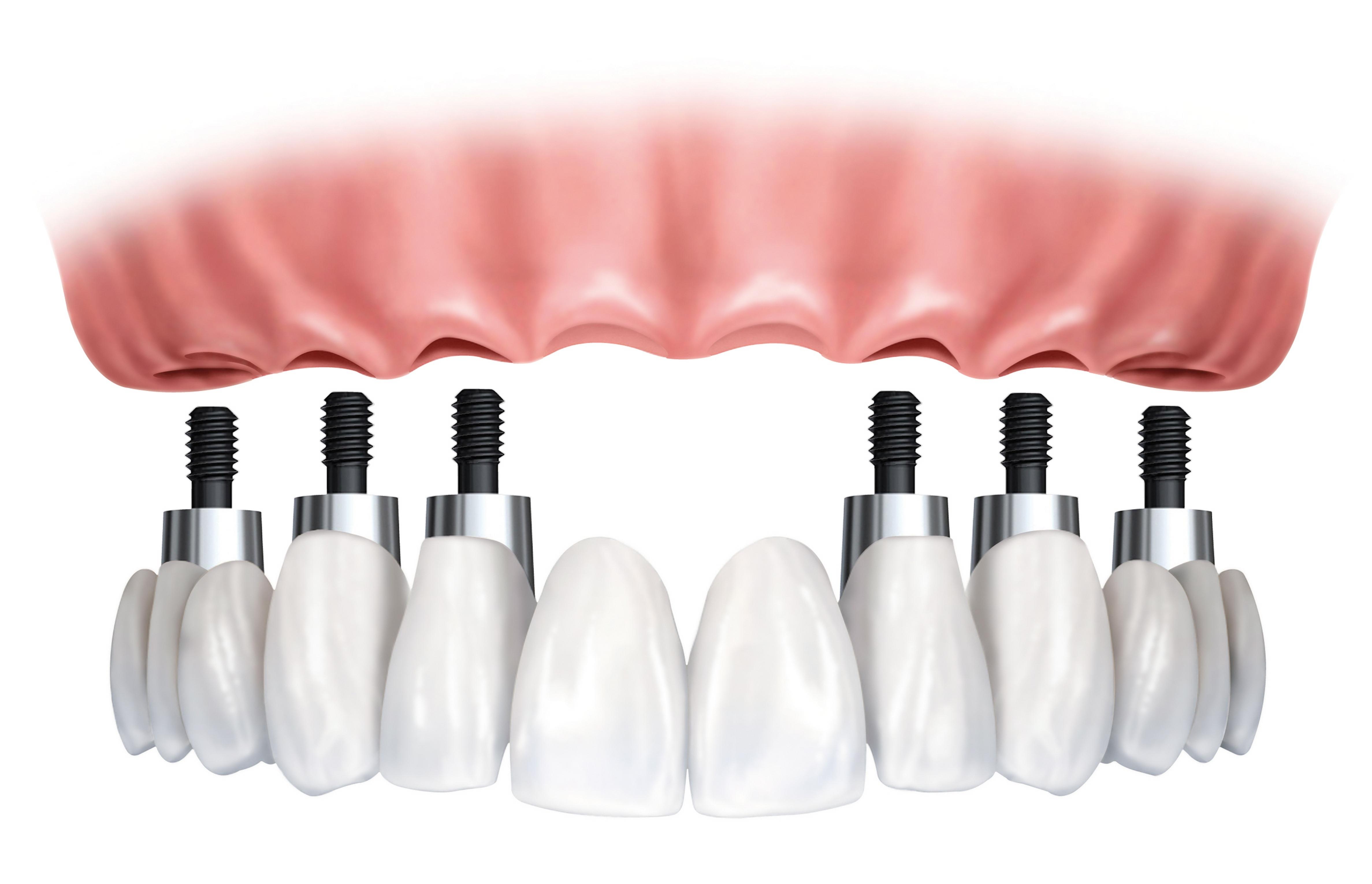 implant-bridge-and-crowns.jpg