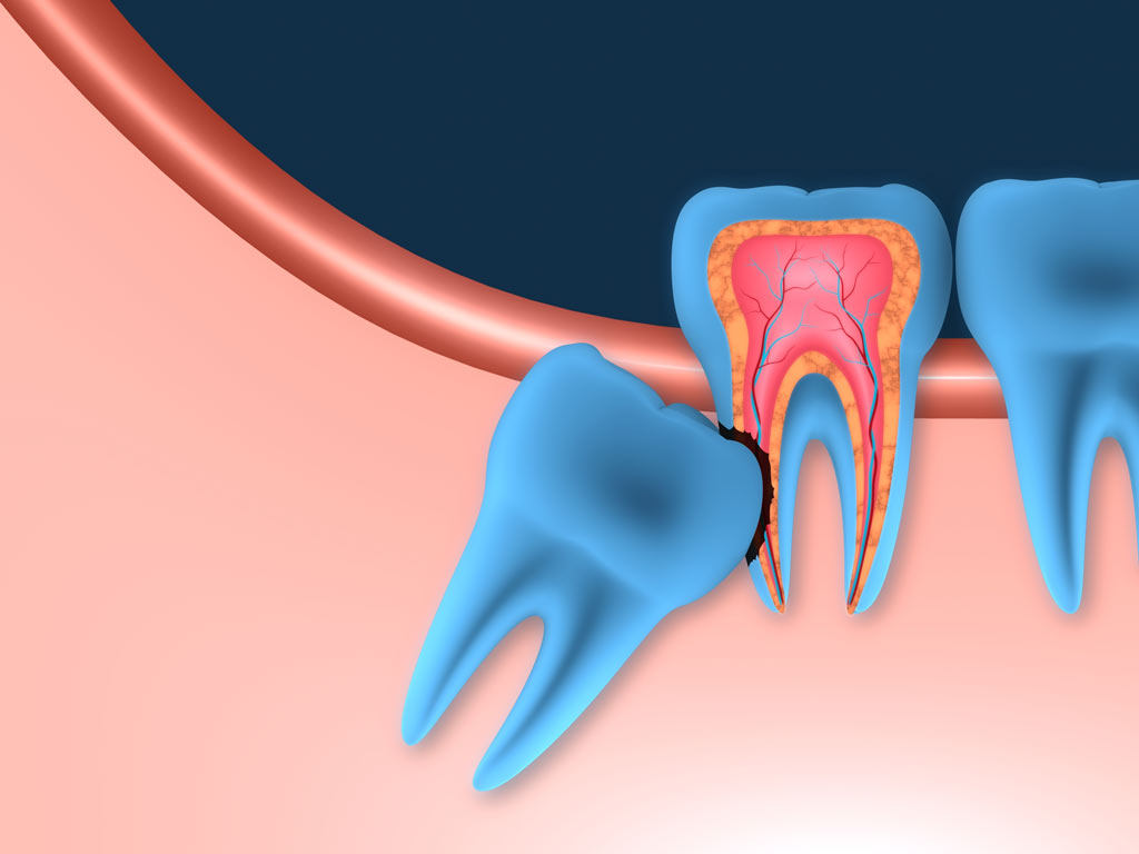 impacted-wisdom-teeth-include.Erosion-cavity-copy.jpg