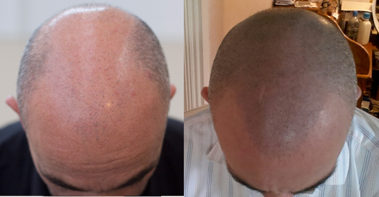 tricopigmentation du cuir chevelu