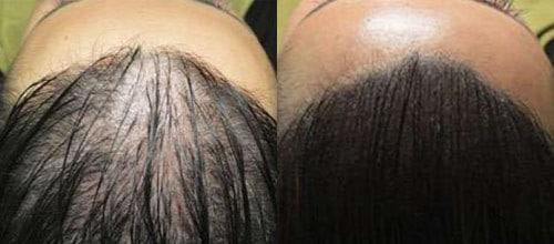 tricopigmentation sur cheveux longs