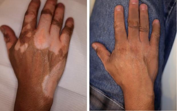 Camouflage de vitiligo