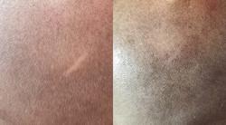 camouflage de cicatrices en tricopigmentation