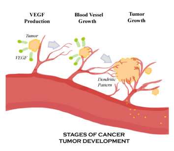 stages of cancer growth.png