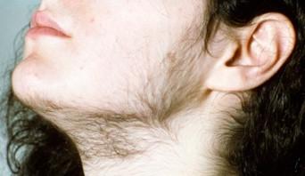 Hirsutism - Unwanted hair growth