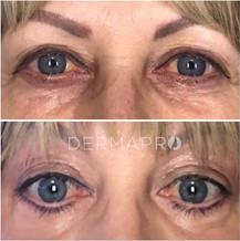 Upper Eyelids