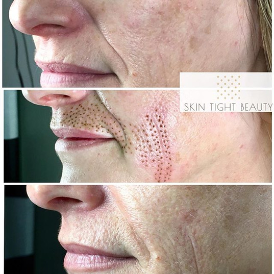 Before, Immediately After and 4 weeks Healed pics. Amazing results!! 🙌 🙌 Minimal down time and continues to tighten for up to 8 weeks.jpg