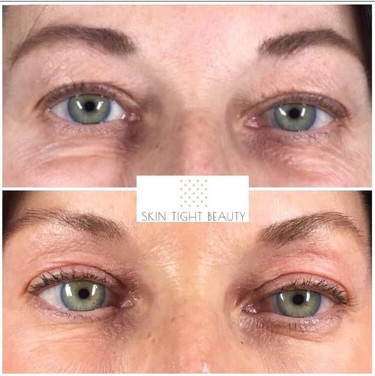 Plasma Eyelid lift! Eight weeks healed! Amazing results!💕. Plasma Skin Tightening is a highly effective alternative to surgery.jpg