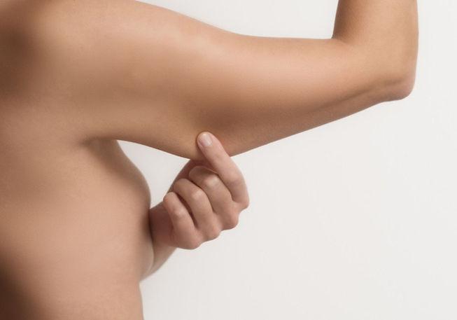 procedimentos-17--lifting-braco-sorocaba