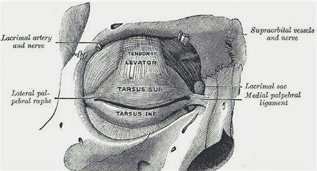lateral kantoplasti