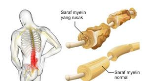 Síndrome de Guillain Barré - Saiba mais sobre a doença que tem se tornado cada vez mais frequente
