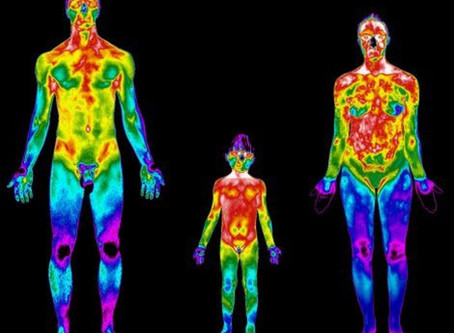 Termografia   O exame que visualiza sua dor