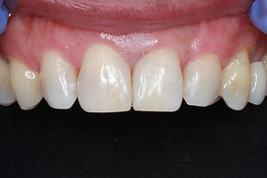 AFTER BIOCLEAR.jpg