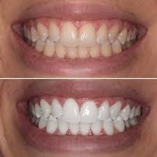 Teeth Whitening using Beyond