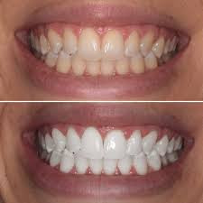 Teeth Whitening using Beyond