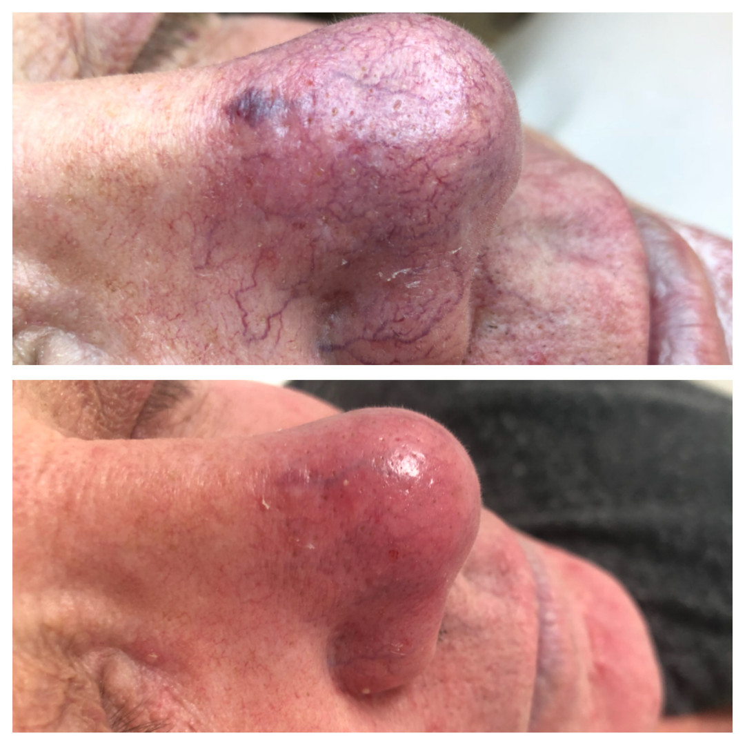 Rosacea after 2 treatments