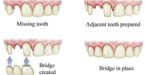 Our Services, Part 2: Dental Bridges & Dentures