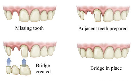 dental bridge, raccio and drew dental, waterford, ct
