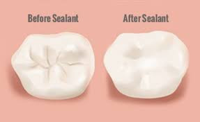 dental sealant, pediatric sealant