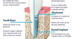 Our Services, Part 3: Implant Restorations & Dental Crowns