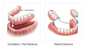 full or partial dentures, raccio and drew dental, waterford, ct