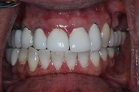 immediate implant #7 before picture.jpg