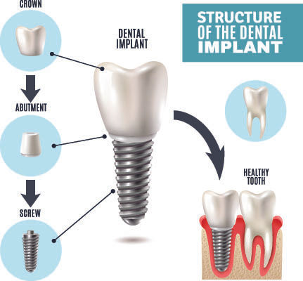 structure of implant.jpg
