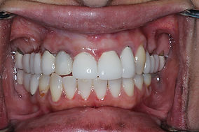 immediate implant #7 temporary picture.j