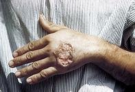 Impavido, Miltefosine, Leishmaniasis