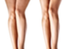 Woman legs before and after treatment-mi